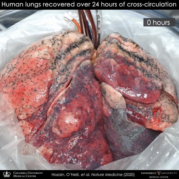 Врачи смогли восстановить человеческие легкие с помощью организма свиньи (ФОТО)