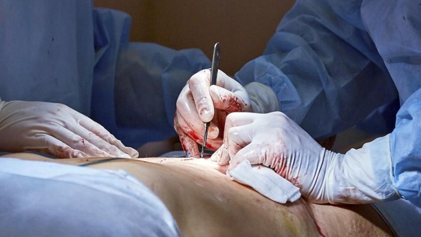 Питерские врачи вырезали изорганизма женщины 42-килограммовую опухоль