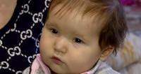 Шанс на здоровое сердце: малышке Аноре срочно нужна операция