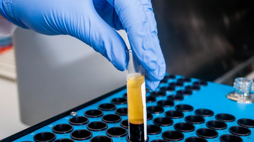 Биологи вылечили обезьян, больных ВИЧ