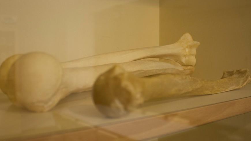 Доза в 9,5 грэя: кости жертв Хиросимы потрясли физиков