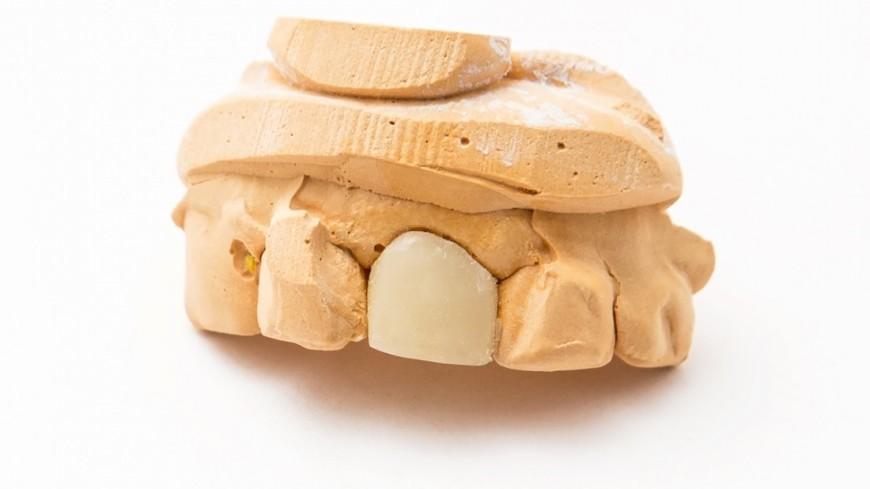 """Фото: Татьяна Константинова (МТРК «Мир») """"«Мир 24»"""":http://mir24.tv/, слепок зубов, зубы, зубная паста, зубная щетка"""