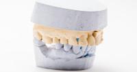 Цена улыбки: где дешевле лечить зубы