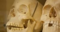 В Италии сотрудники кладбища относили черепа в ломбард