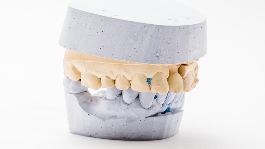 В Индии врачи удалили у 7-летнего мальчика более 500 зубов