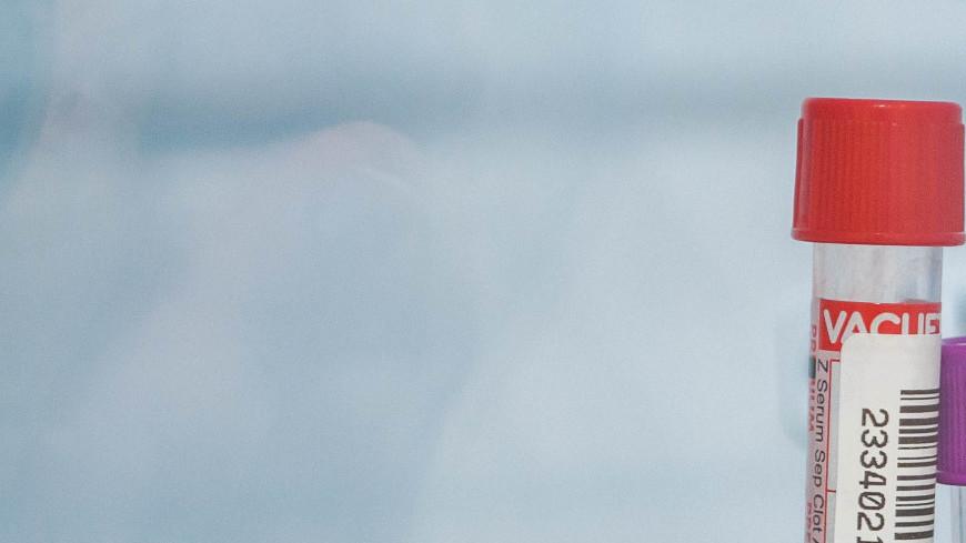 """Фото: Сергей Минеев (МТРК «Мир») """"«Мир 24»"""":http://mir24.tv/, центрифуга, больница, врач, врачи, обследование, доктор, лаборатория, медицина, медицинская помощь, болезнь, кабинет, кабинет врача, палата, анализ, анализы, пробирка, колба, кровь, сдать кровь"""