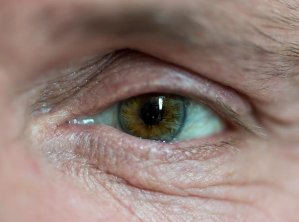 Редкий вид: врачи назвали симптомы рака глаза