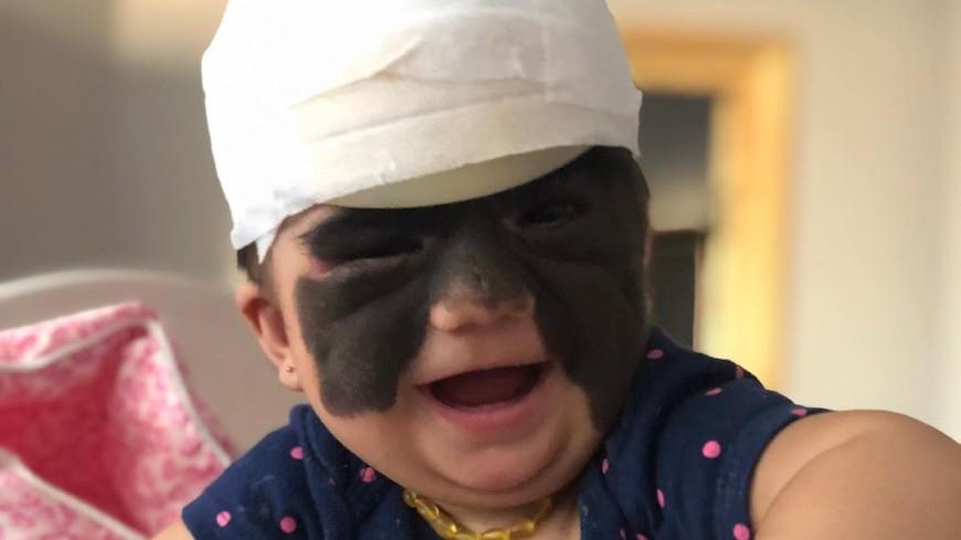 Родинка уменьшилась: мама девочки Луны показала результат первой операции