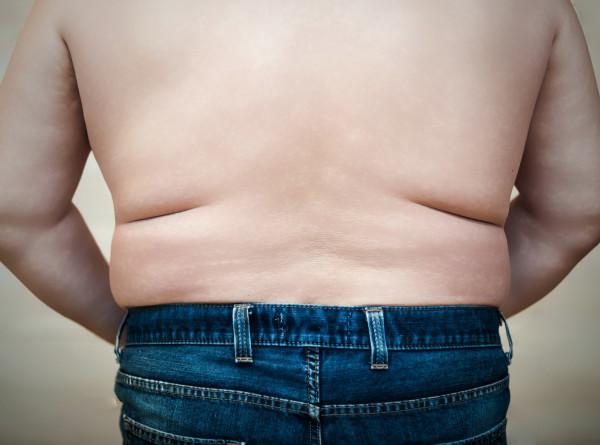 Ученые установили связь между ожирением и плохим усвоением глюкозы