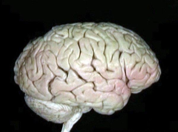 Ученые: Избыток железа ухудшает когнитивные функции