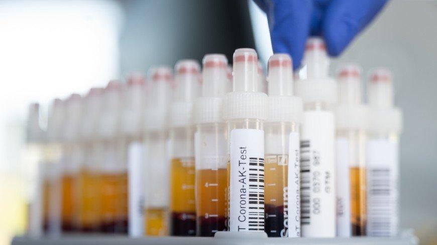 Роспотребнадзор провел 27,1 миллиона тестов на выявление COVID-19
