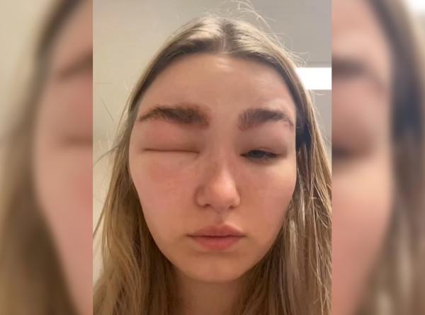 Британка попала в больницу после ламинирования бровей