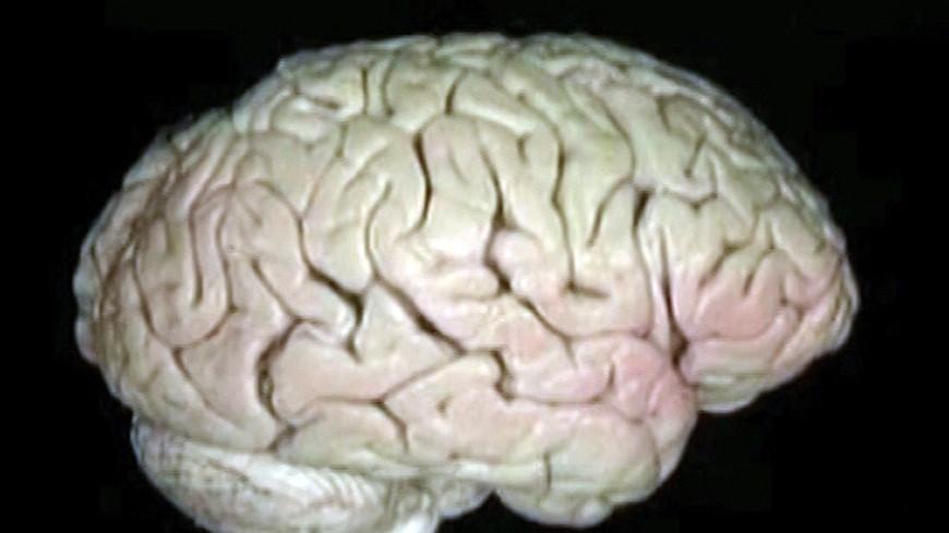 """""""Фото: «МИР 24»"""":http://mir24.tv/ _(скриншот)_, мозг"""