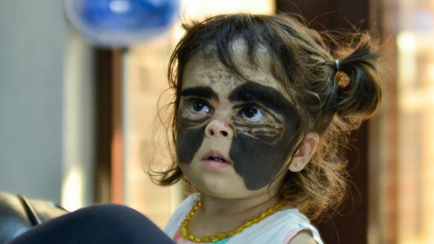 В Краснодаре хирурги сделали третью операцию «девочке с маской Бэтмена»
