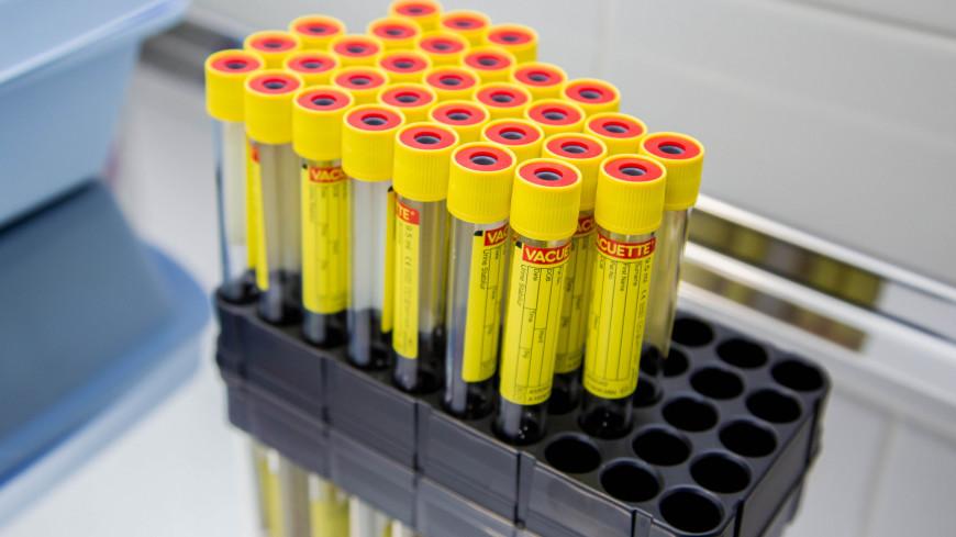 В России зарегистрирован препарат для лечения коронавируса на основе плазмы крови