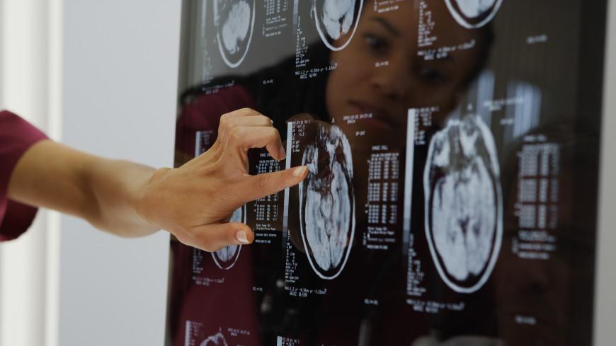 Ученые установили, как коронавирус проникает в мозг человека
