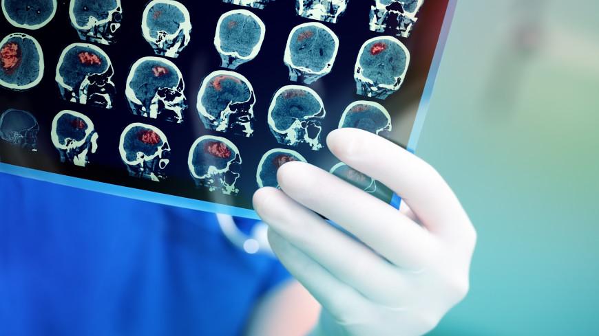 Ученый рассказал, какие симптомы указывают на опухоль мозга