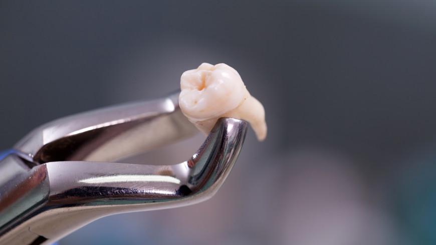 Найдена неожиданная польза удаления зубов мудрости