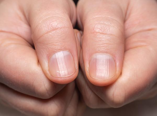 Назван способ определить коронавирус по ногтям (ФОТО)