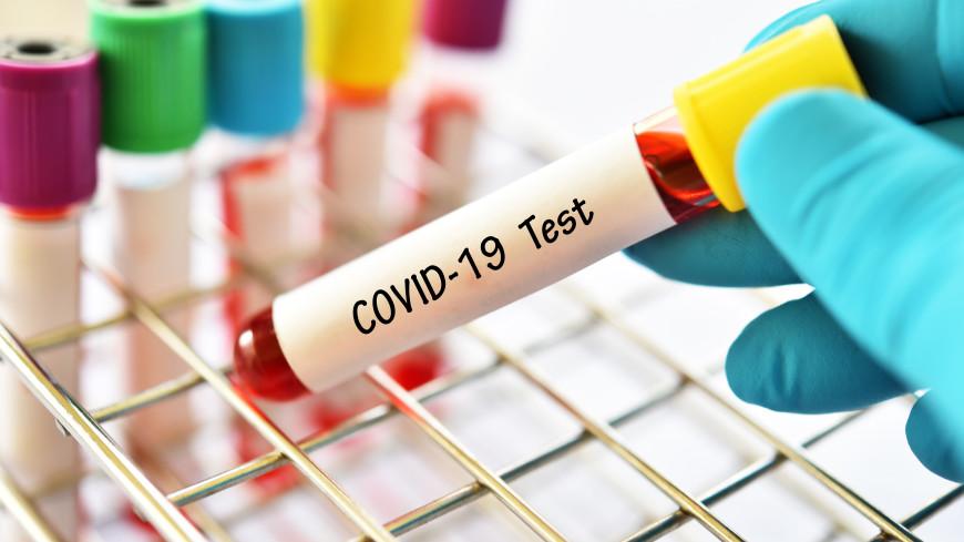 В России за сутки выявили 25 781 новый случай COVID-19
